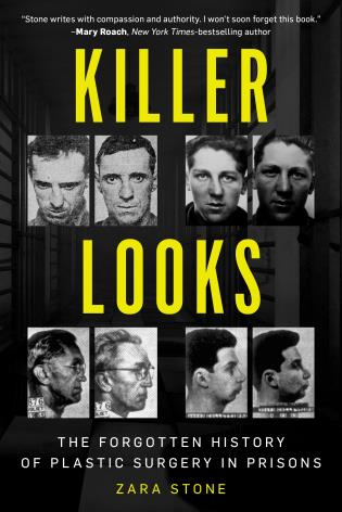 Cover image for the book Killer Looks: The Forgotten History of Plastic Surgery in Prisons